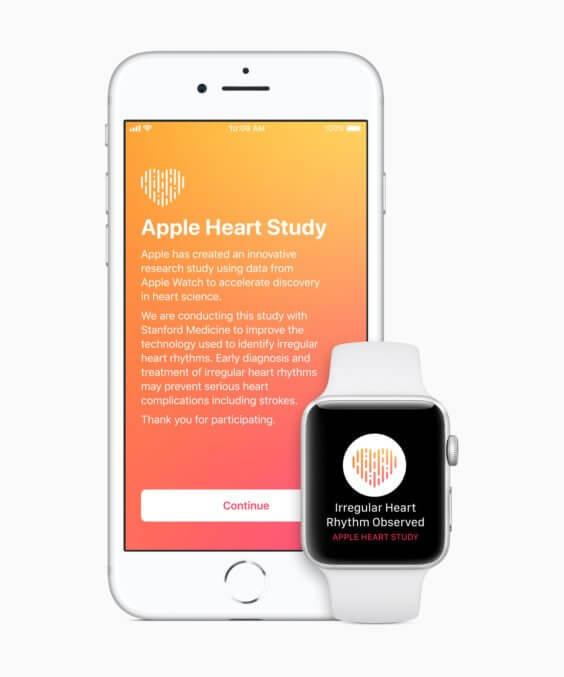 Apple Watch Herzstudie - Apple